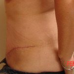 After - Abdominoplasty #3 from the left