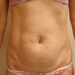 Before - Abdominoplasty #4 from the front