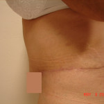 After - Abdominoplasty #6 from the left