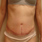 After - Abdominoplasty #7 from the front