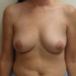 Before - Breast Augmentation #6 from the front
