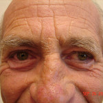 After - Blepharoplasty #1 from the front
