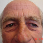 Before - Blepharoplasty #1 from the front