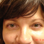 After - Blepharoplasty #2 from the front