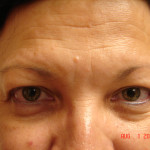 Before - Blepharoplasty #2 from the front