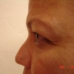 Before - Blepharoplasty #2 from the left