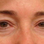 After - Blepharoplasty #4 from the front