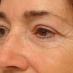 After - Blepharoplasty #4 from the left