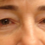 Before - Blepharoplasty #4 from the front