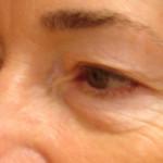Before - Blepharoplasty #4 from the left