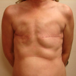 Before - Breast Reconstruction #1 from the front
