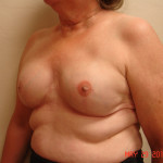After - Breast Reconstruction #2 from the left