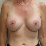 After - Augmentation Mastopexy #5 from the front