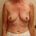 Before - Augmentation Mastopexy #5 from the front