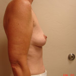 Before - Augmentation Mastopexy #5 from the right