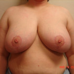 After - Reduction Mammoplasty #3 from the front