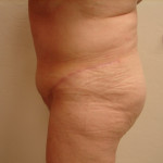 AfterTummy Tuck from the left