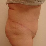 AfterTummy Tuck from the right