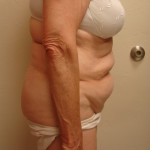 Before Tummy Tuck from the right