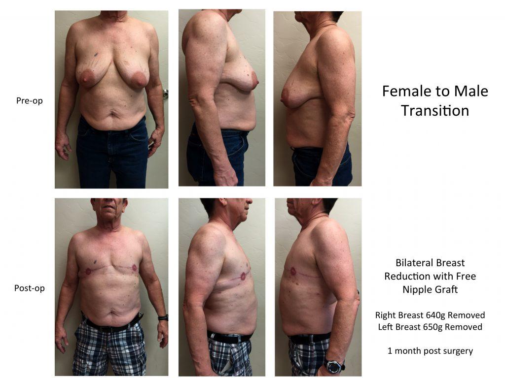 Transgender Female to Male
